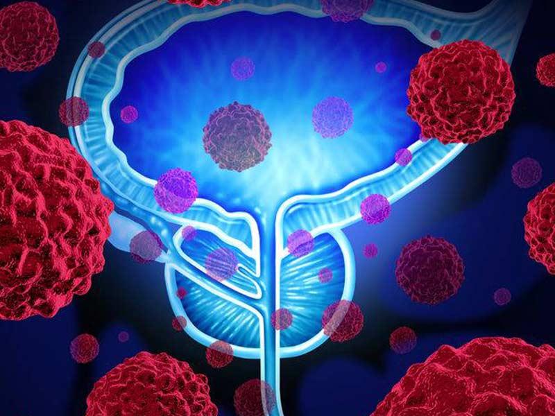 tumore prostata risonanza multiparametrica